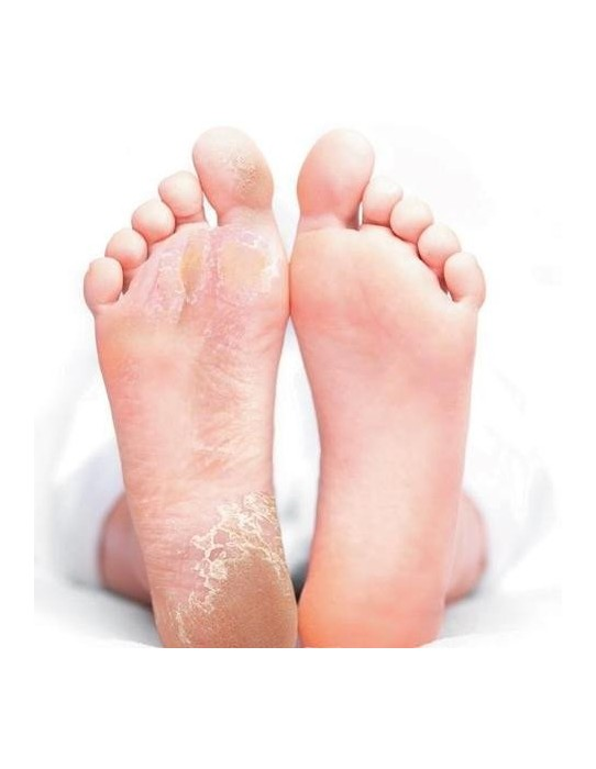 Exfoliating mask for foot care