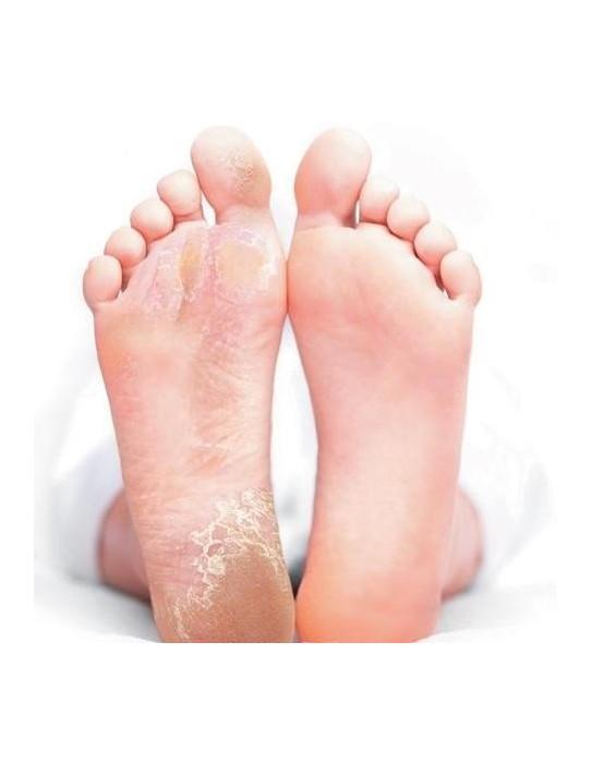 Masque exfoliant pour le soin des pieds